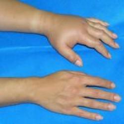 בצקת של כף היד אצל חולה אַנגיוֹאֶדֶמה