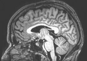 תמונה של המוח האנושי המתקבלת לאחר סריקת MRI