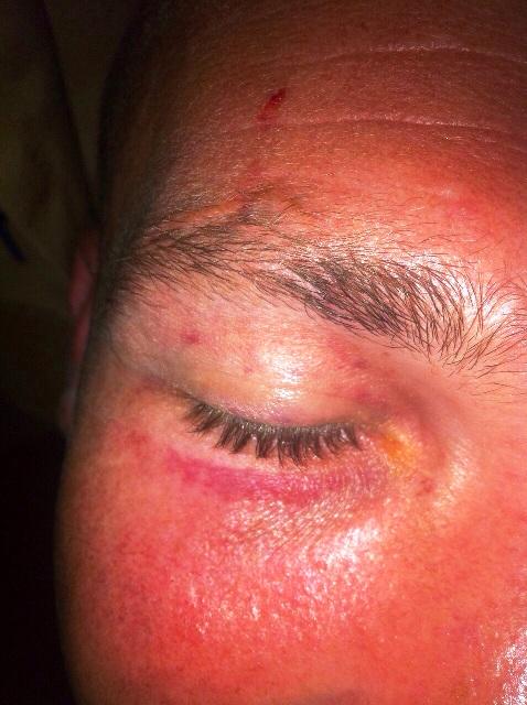 מאבטח המרכז הרפואי לגליל המערבי הותקף בידי מטופל