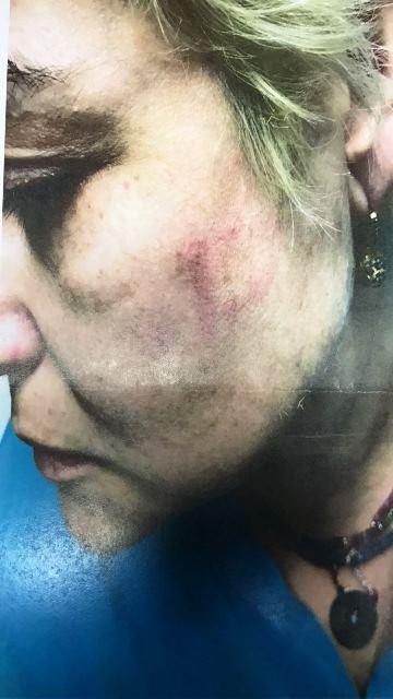 """האחות הותקפה באגרופים (צילום באדיבות דוברות רמב""""ם)"""