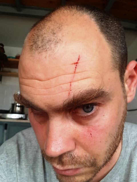 """יונתן פולק לאחר התקיפה (צילום מחשבון הטוויטר של ח""""כ כסיף ובאדיבות המרואיין)"""