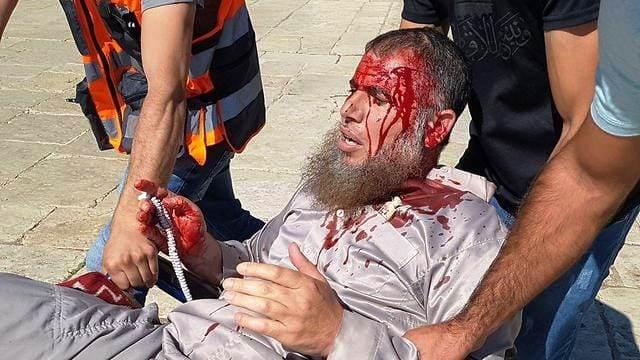 אחד הפצועים בהר הבית (צילום: תקשורת פלסטינית)