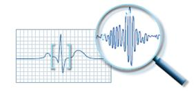 טכנולוגיה ישראלית משפרת ב-30 אחוז את אבחון מחלות הלב בבדיקת א.ק.ג במאמץ