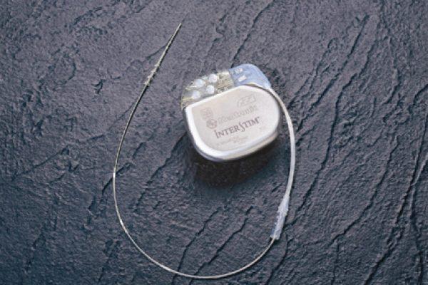 הנוירוסטימולטור