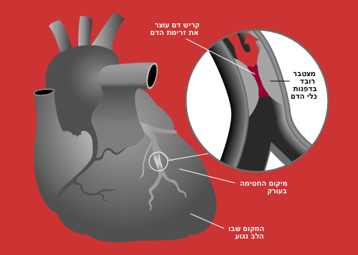 חידושים בטיפול בחולים לאחר התקף לב
