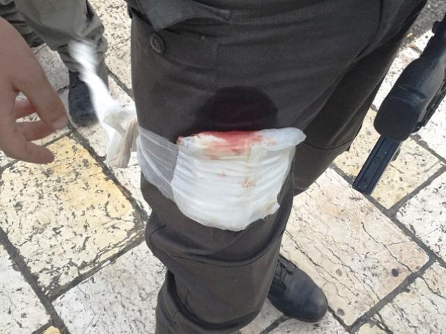 """נפצע קל - לוחם המג""""ב (צילום: qpress)"""