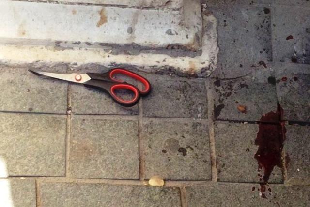 2 פצועים קל בפיגוע דקירה בירושלים