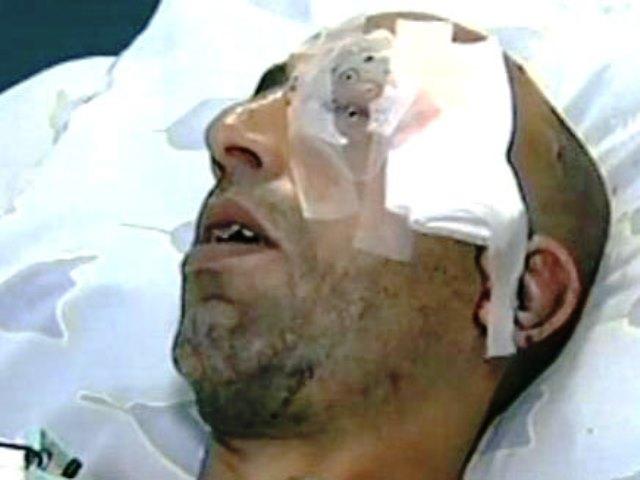 חסן אוסרוף, הותקף בשל היותו ערבי בטיילת בתל אביב (אין קשר בין המצולם לאירוע. תמונת המחשה - צילום ארכיון)