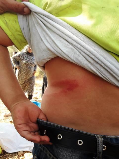 חבטת אלה בגב אחד הצעירים (צילום באדיבות מועצת דיר עמאר)