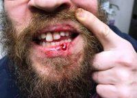 שברו את שיניו (צילום באדיבות המצולם)